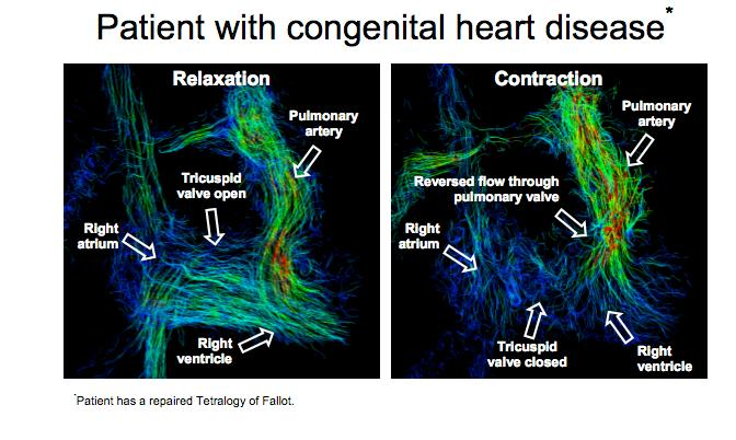 4D images show blood flow, direction and velocity and are markedly different in healthy volunteers when compared to patients with heart problems (Image: University of Wisconsin School of Medicine and Public Health)