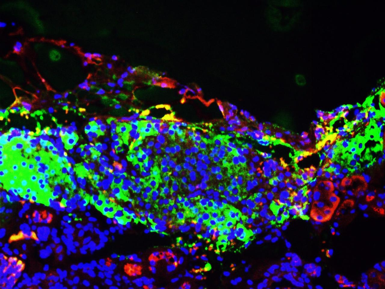 The patient-derived pancreatic beta cells respond to sugar by producing insulin, as in people without diabetes