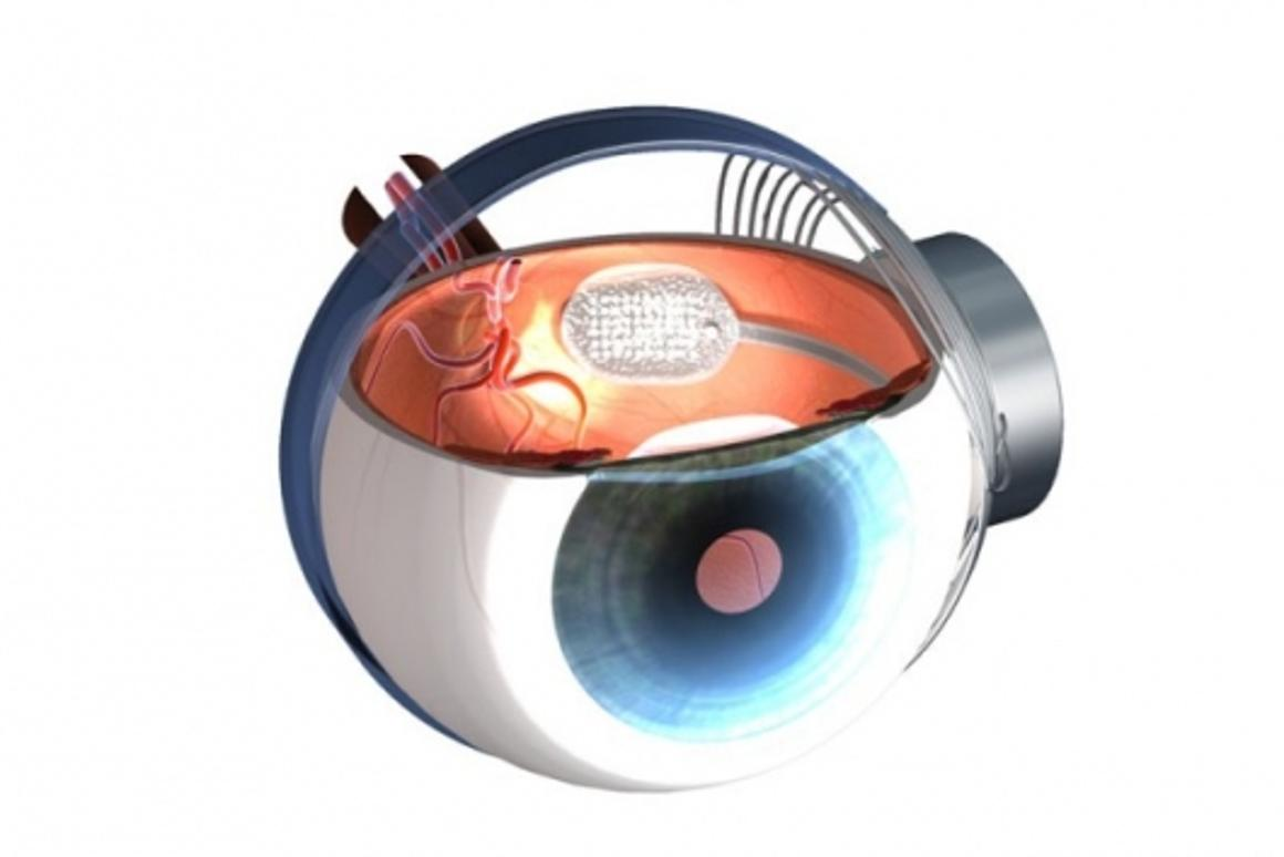 Argus II retinal implant