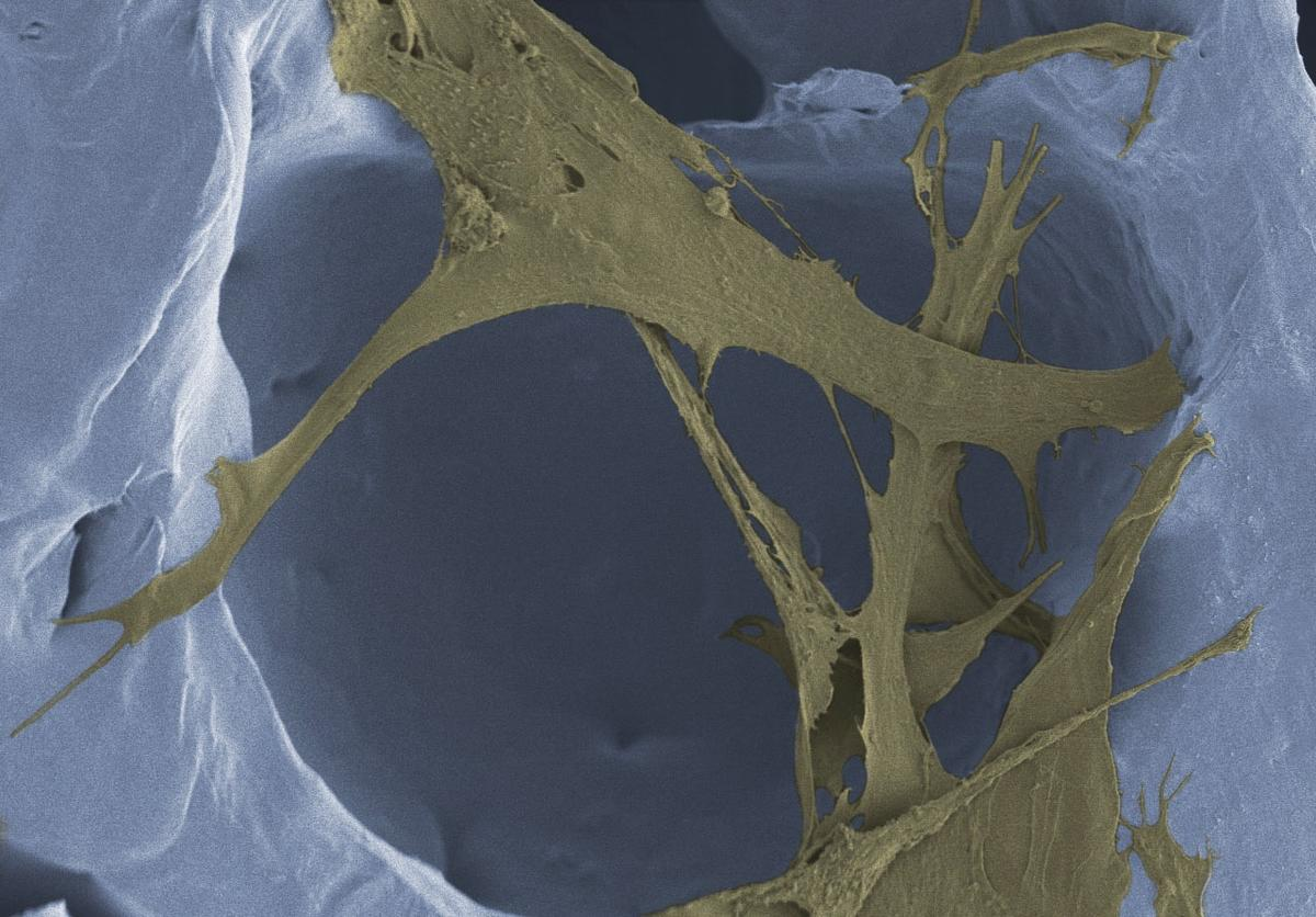 New skin tissue (brown) grows within the foam's polymer scaffolding (white)
