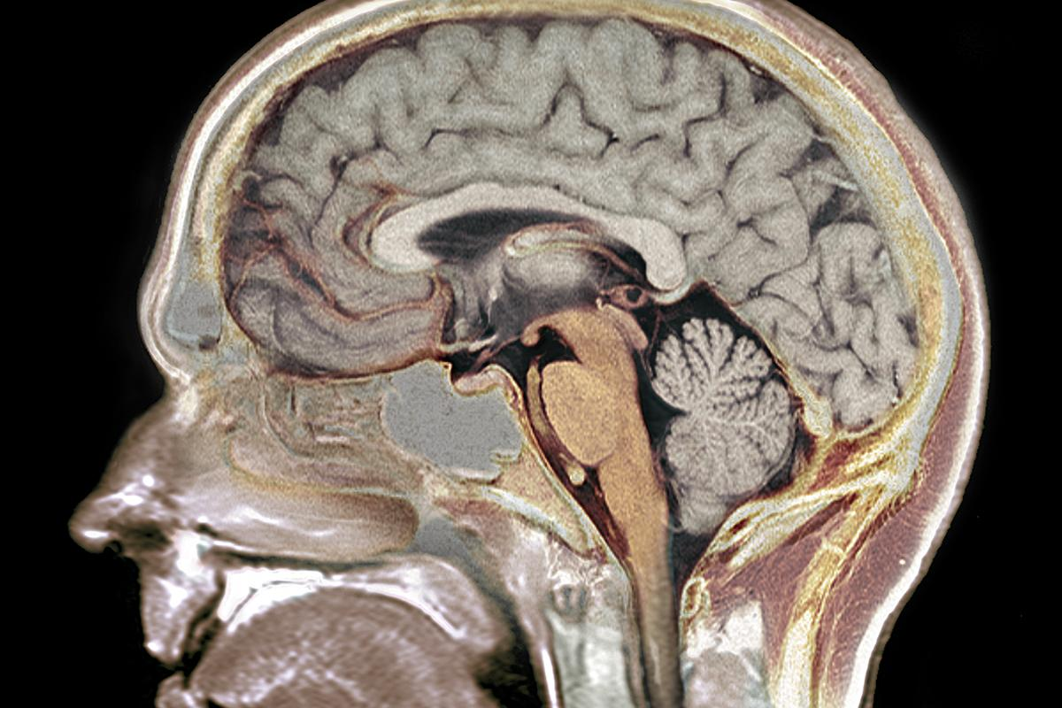 Researchers have discovered a common genetic variant that accelerates aging in elderly brains