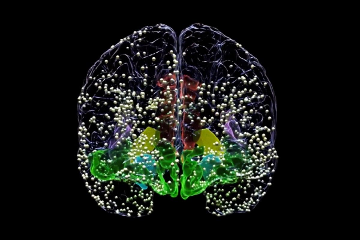 All the above dots represent the locations where electrodes were temporarily implanted as part of new research into the use of DBS to treat depression
