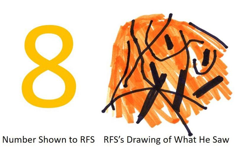 Looking at any digit between 2 and 8, patient RFS could only see a spaghetti-like scramble of lines and colors, as depicted here