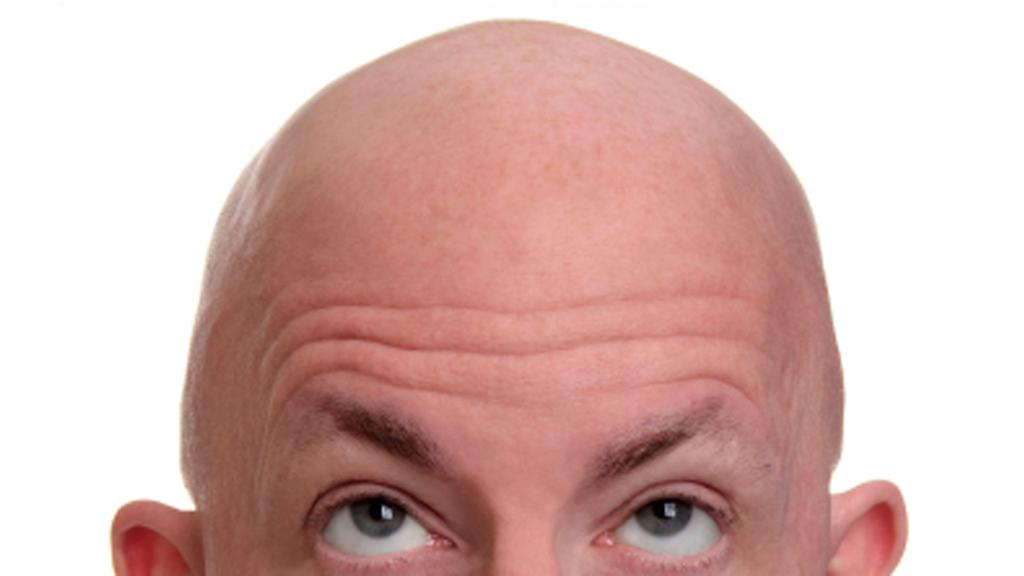A discovery by Yale researchers could lead to new treatments for baldness