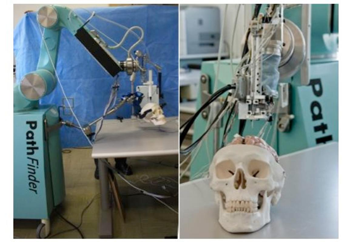 The ROBOCAST Project is developing a robotic system for assisting with keyhole neurosurgery