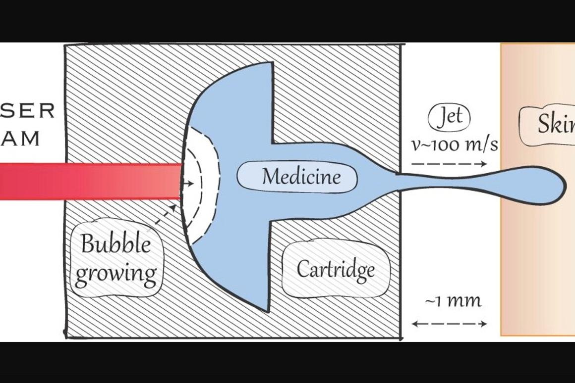 A diagram of the setup – as indicated, it could be used to inject medication as well as tattoo ink