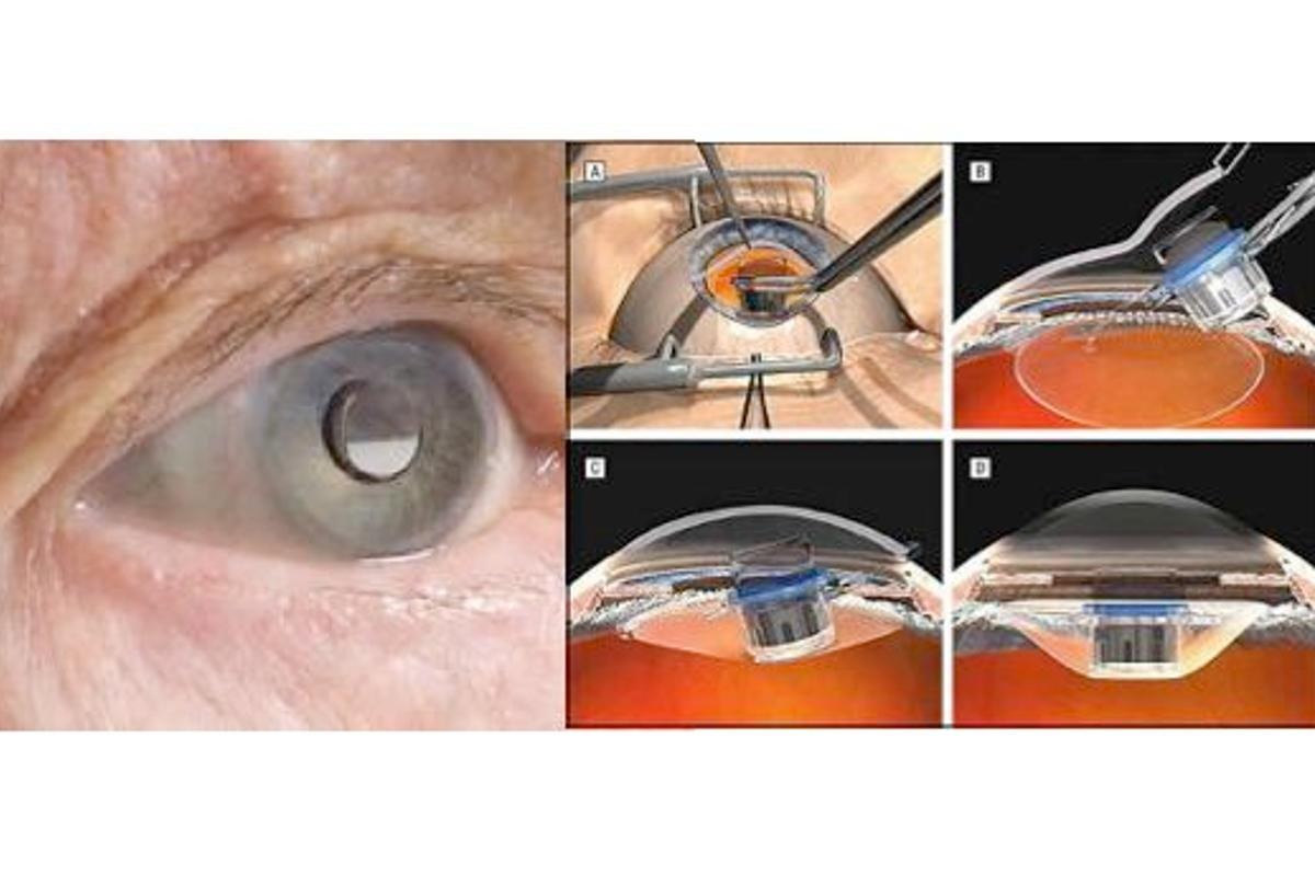 The FDA has finally approved a miniature eye telescope that will aid sufferers of end-stage macular degeneration(Photos: Colby et al, VisionCare)