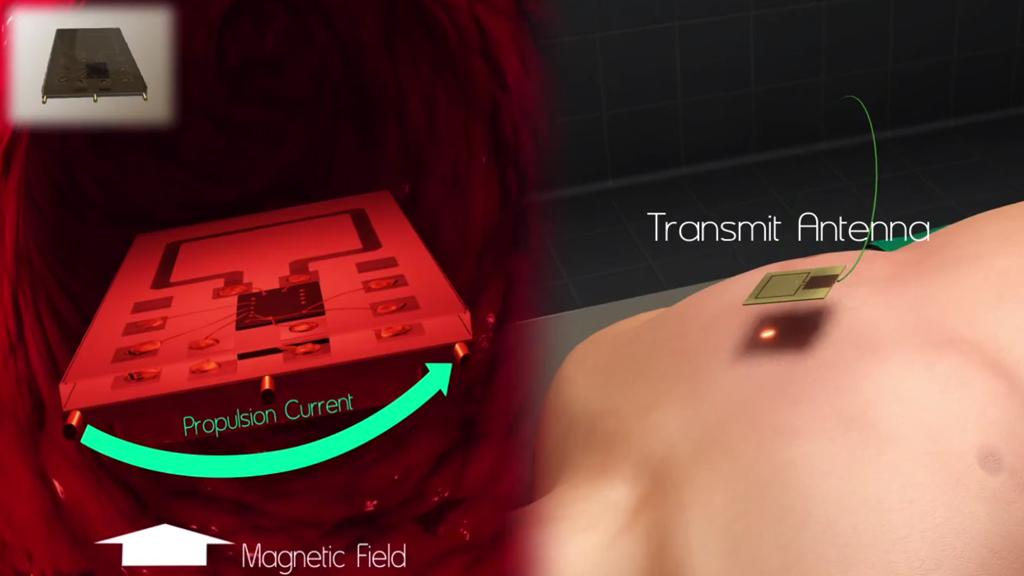 The implant developed at Stanford University would be wirelessly powered by a radio transmitter outside the body