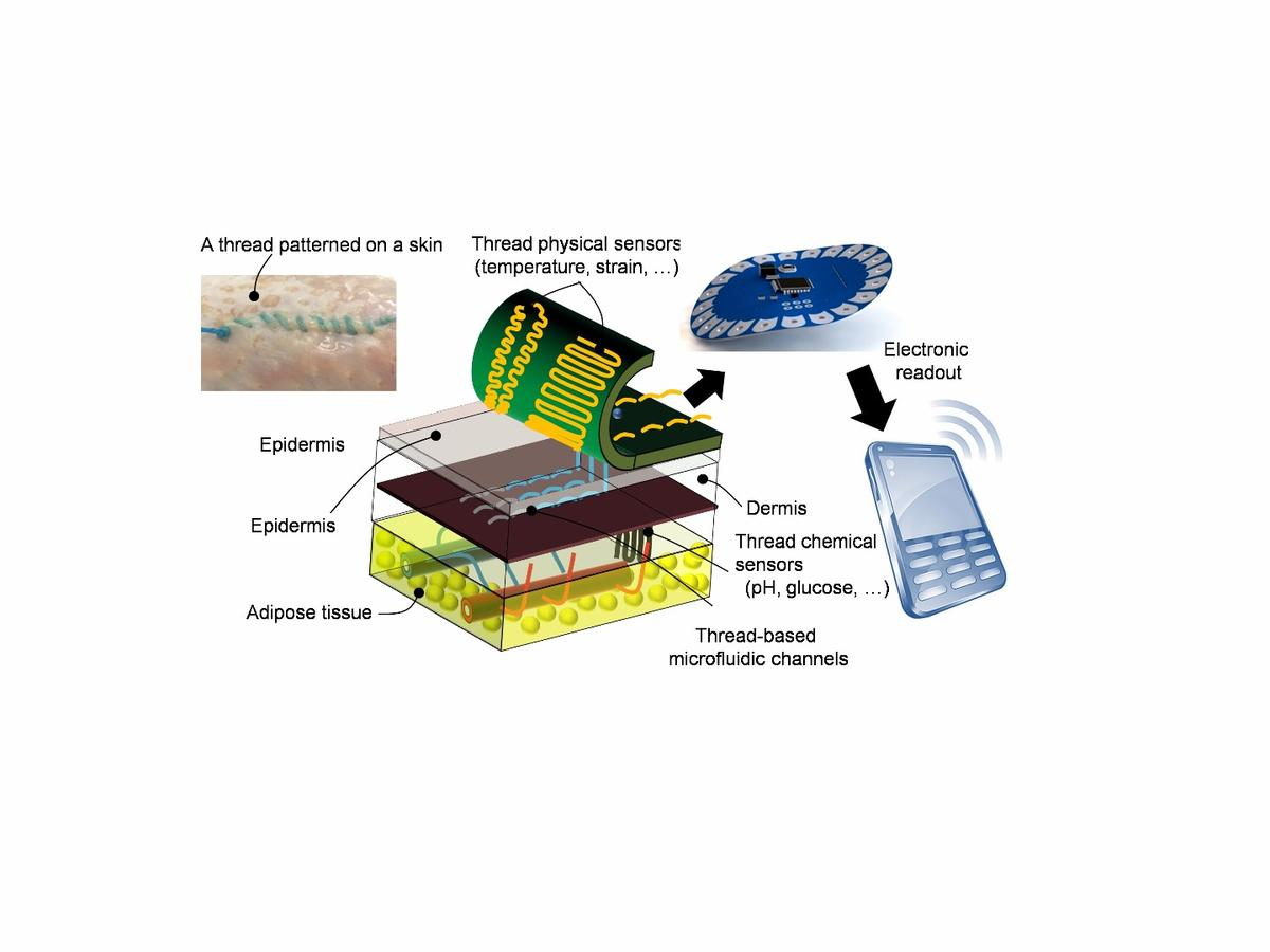 Adiagramshowing how the smart sutures work