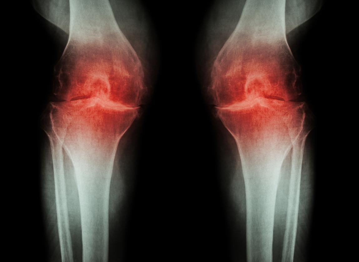 Researchers have found a combination of drugs that appear to reverse the symptoms of osteoarthritis