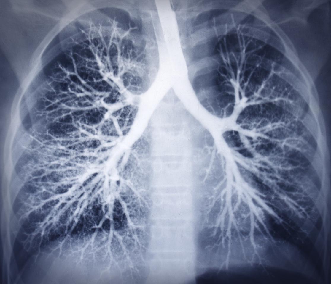 A new sensor/software combo monitors wheezing sounds to assess respiratory health