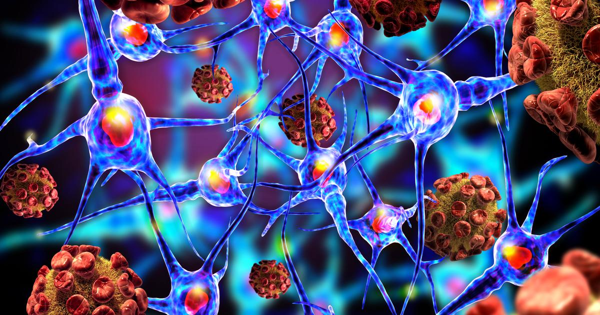 Herpes virus variant suggested as trigger for multiple sclerosis