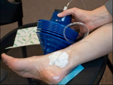The simple pump creates negative pressure — shown here sealing a bandage on a leg wound — which speeds up the healing process (Photo: Patrick Gillooly)