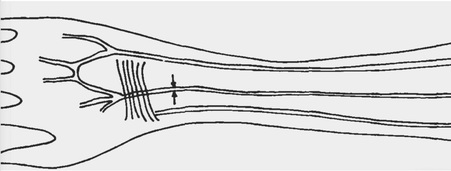 A sketch showing where the median artery can be found in a human forearm
