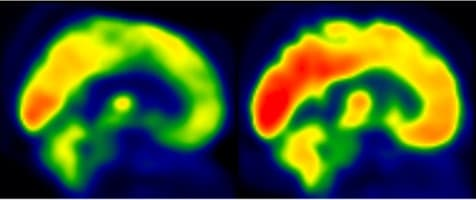 Brain scans indicate brain glucose metabolism (in red), with an individual partaking in low-level of physical activity seen on the left, and another undergoing moderate intensity aerobic training on the right