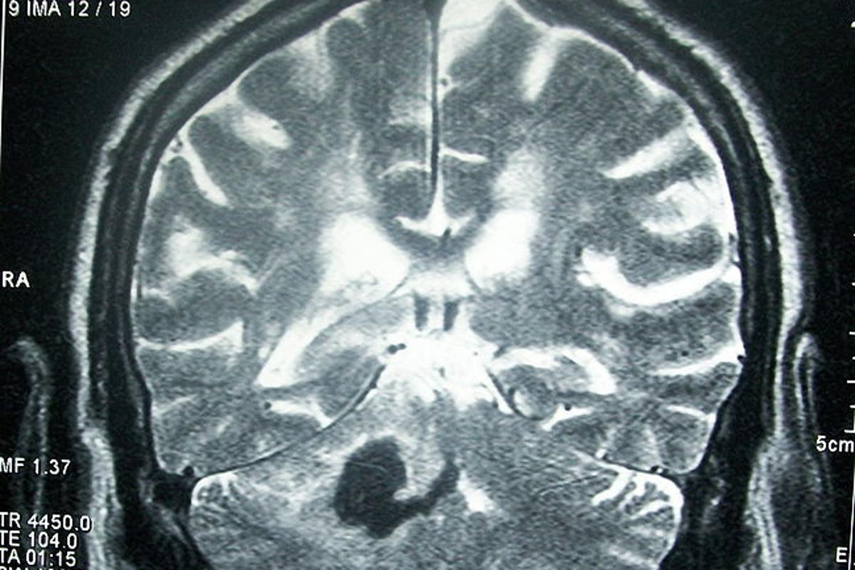An experimental new stroke treatment replicates and enhances the brain's natural reaction to being in an enriched, stimulating environment (Image: Bobjgalindo)