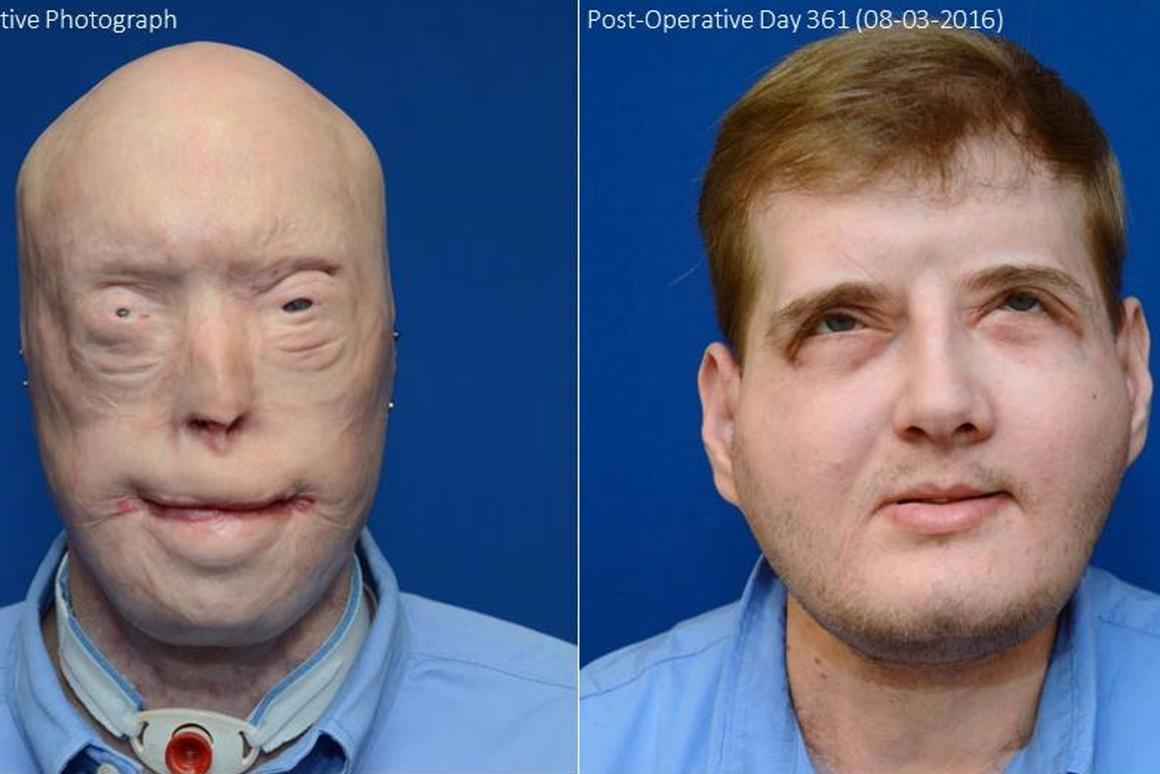 Patrick Hardison before the transplant and a year later