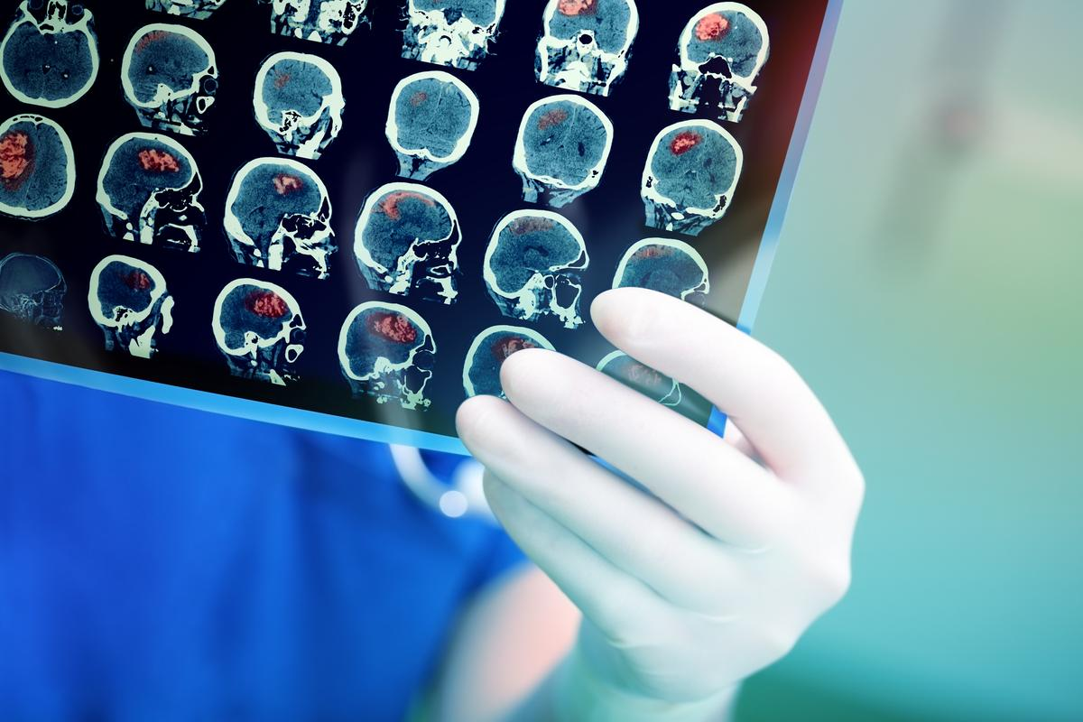 A study found an old schizophrenia drug may increase the efficacy of radiation therapy treating aggressive brain cancer