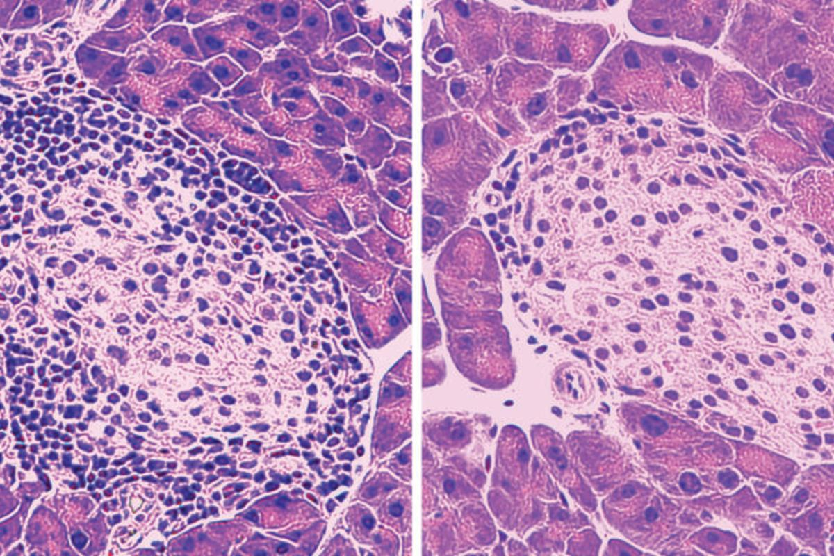 The darker spots indicate killer T cells, infiltrating a mouse pancreas to attack insulin-producing beta cells. Treatment with the peptide MOTS-c reduced the number of these cells (right image), preventing the onset of type 1 diabetes.