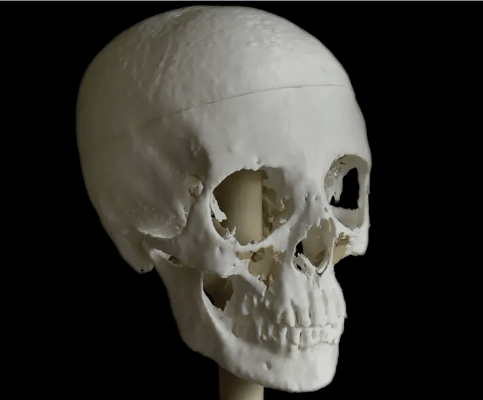 The skull was 3D-printed from a CT scan