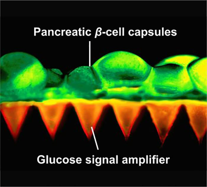 The researchers also created what they called glucose-signal amplifiers, synthetic nanovesicles filled with chemicals that enable them to recognize rising blood sugar levels and release insulin where needed