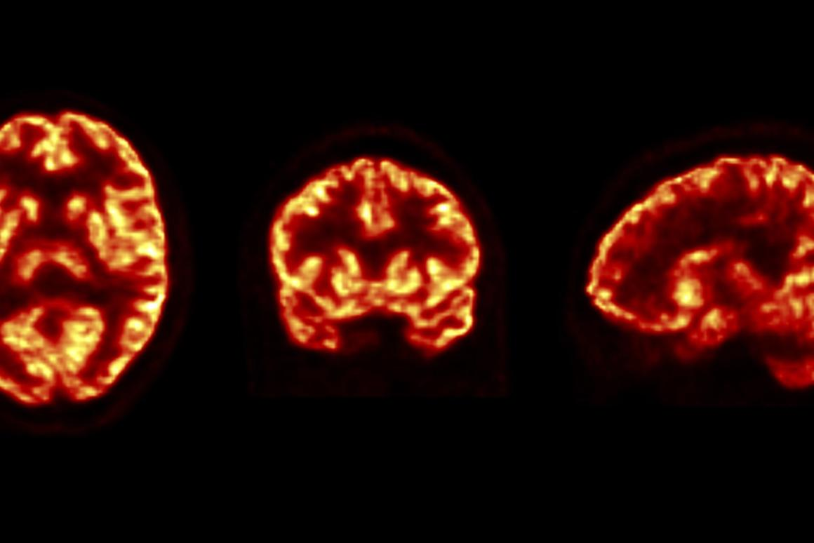 The researchers were able to use a PET scanner to image synapse health in living patients