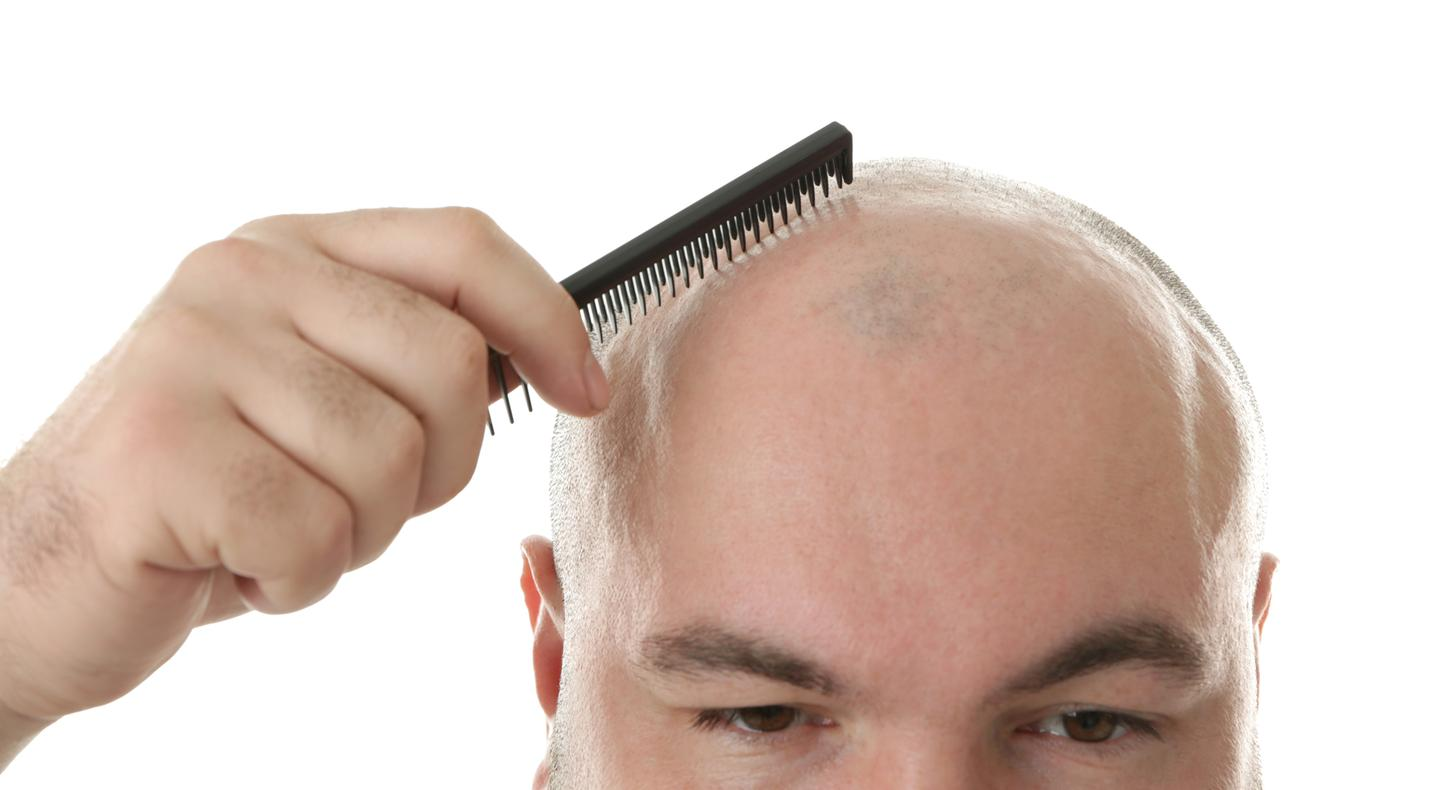 Researchers have identified a molecule that promotes hair regrowth
