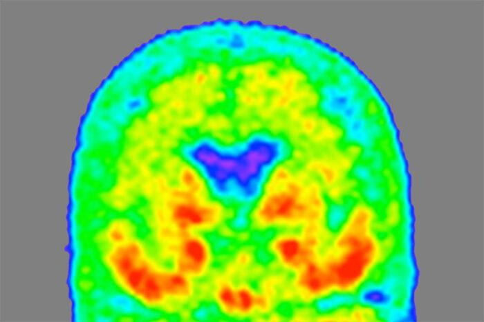 A heat map of the brain showing where tau proteins are concentrated