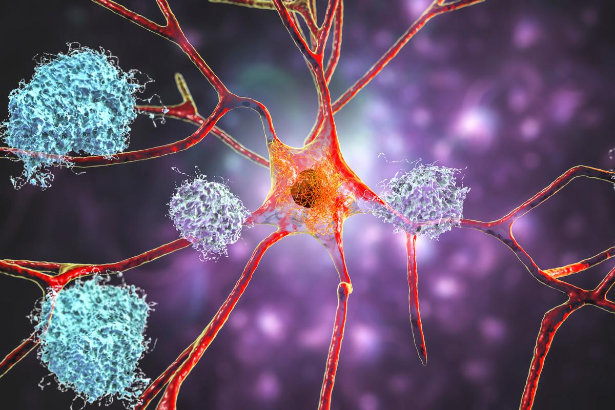 Approval of a new Alzheimer's drug comes after a FDA advisory panel last year overwhelmingly concluded there is not enough evidence to claim it is effective
