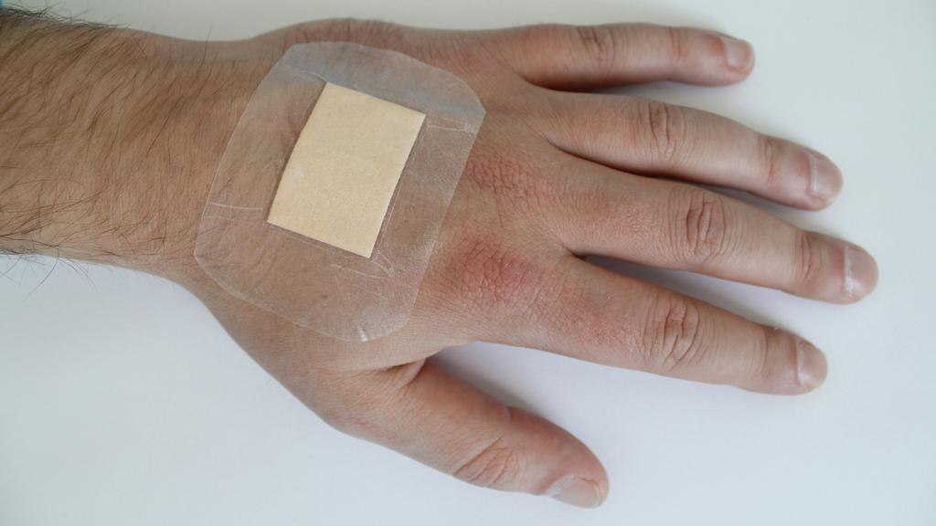The new dressing material indicates infection by turning purple (Image: Fraunhofer EMFT)