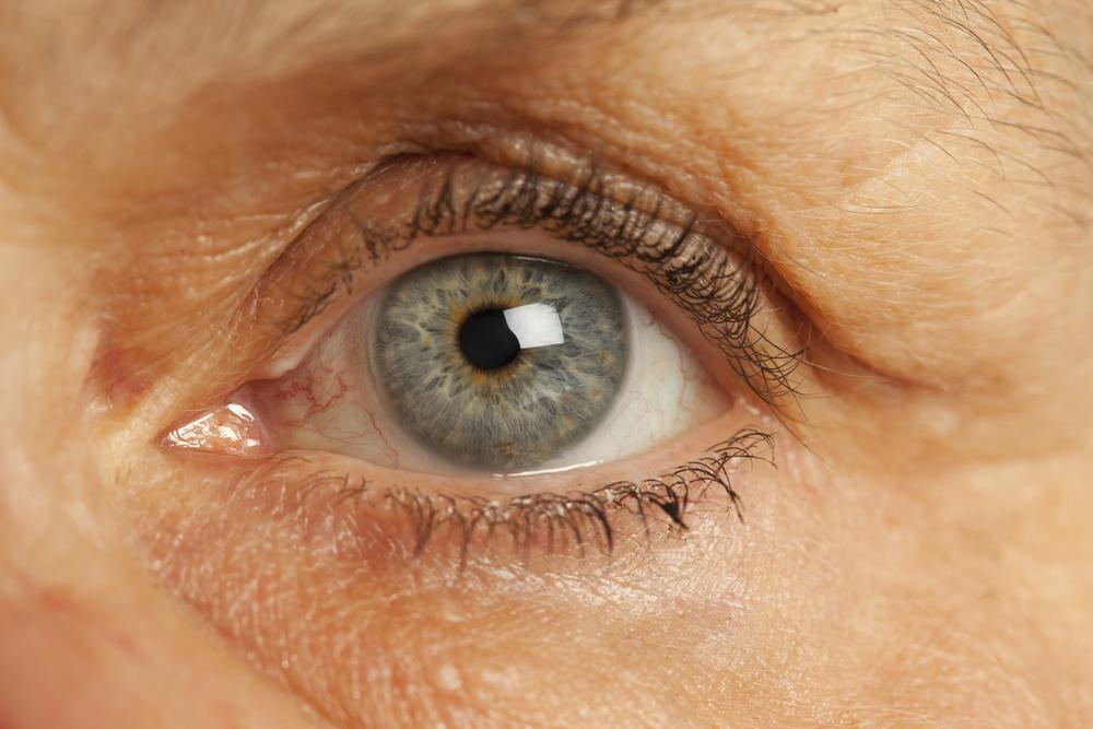 The implant measures internal optic pressure, excessive amounts of which can lead to loss of vision (Photo: Shutterstock)