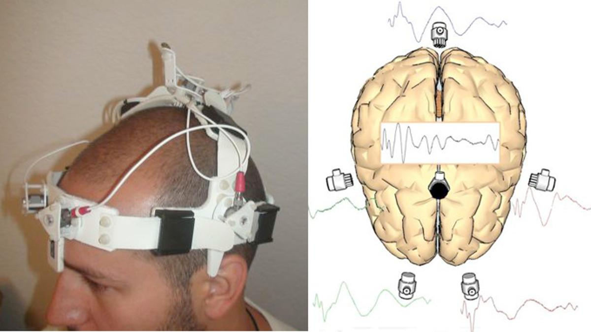 A new head-worn device uses sonar for quick detection, diagnosis and monitoring of stroke