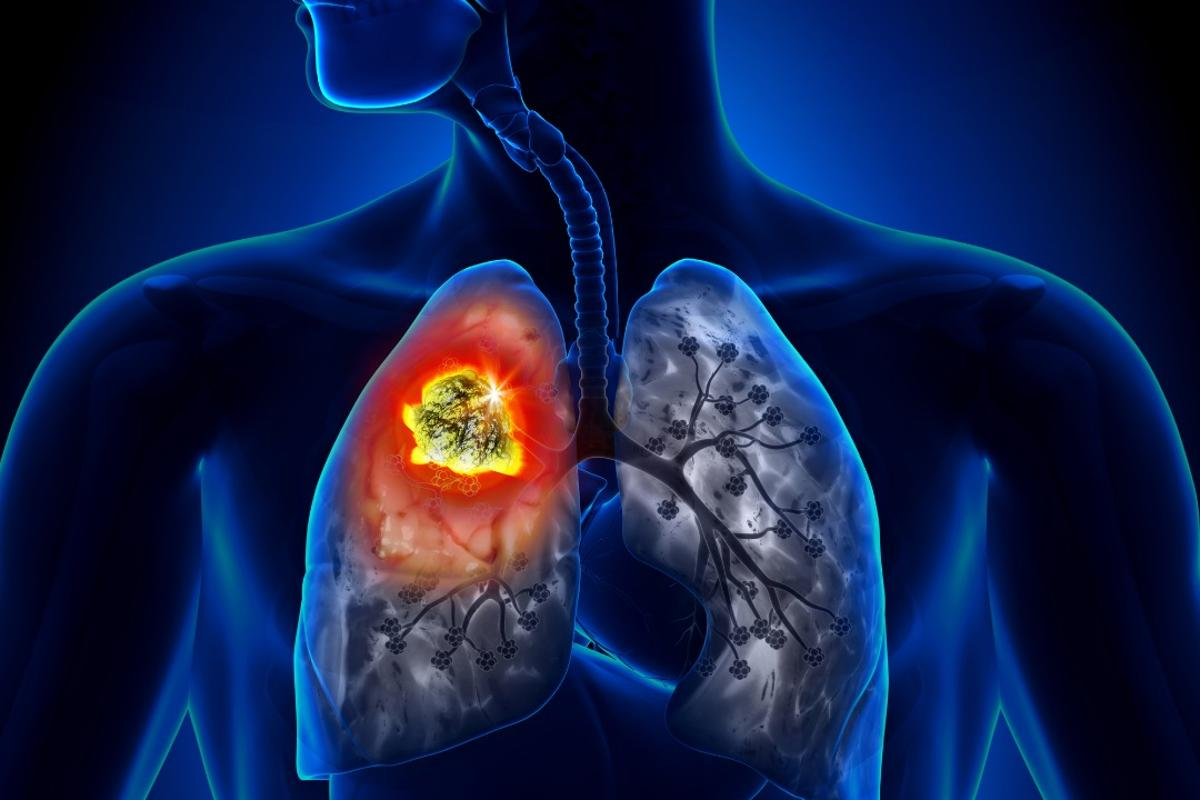 A new dual-drug treatment offers new hope in battling lung cancers