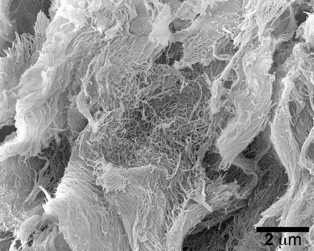 A scanning electron microscope image of the injectable cancer-fightinghydrogel, dubbed STINGel