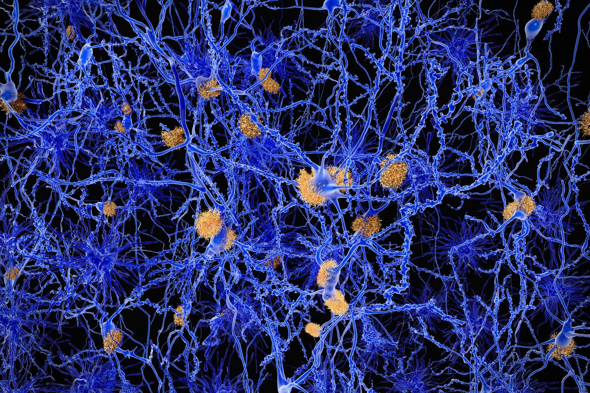 An illustration of a brain plagued by Alzheimer's disease and plaque buildup