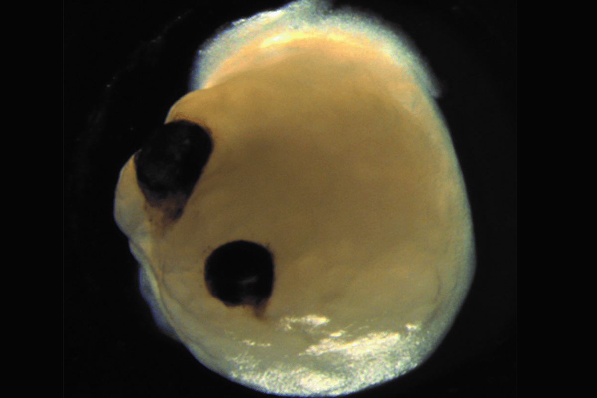 A brain organoid, with two optic cups that can detect light