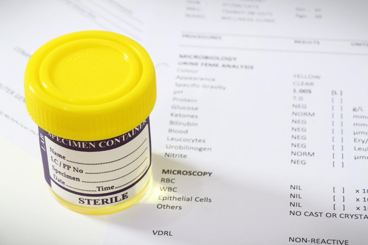 The US Irvine team says that a new approach using a urine sample can greatly cut the resources and time needed to screen for the hepatitis C virus