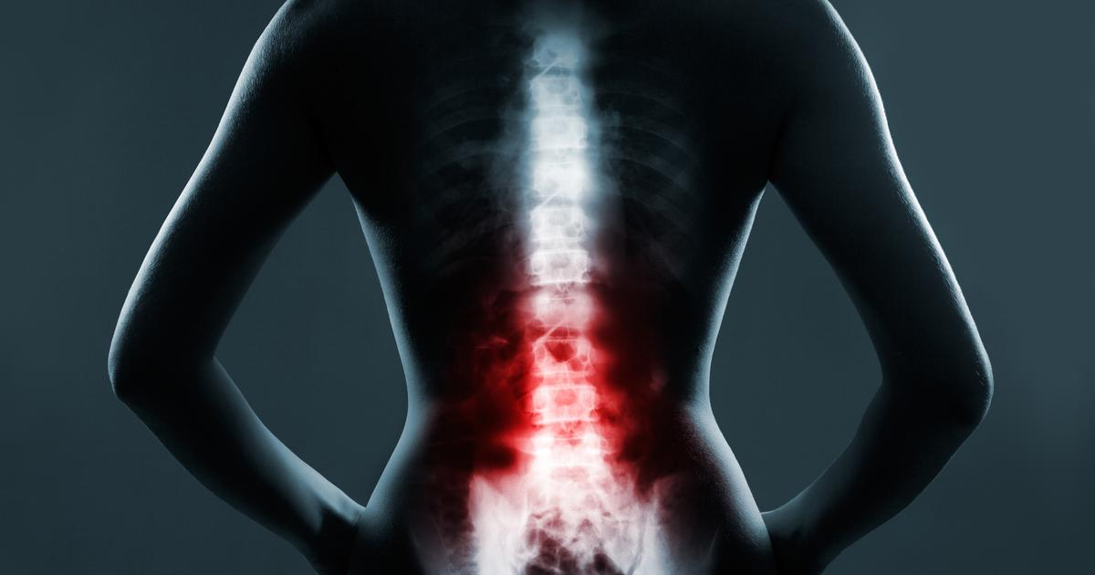 New evidence stem cell therapy helps spinal injury patients