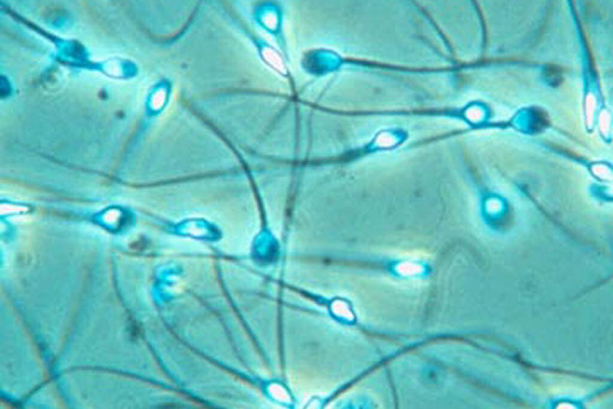 Dutch scientists develop home sperm counting device