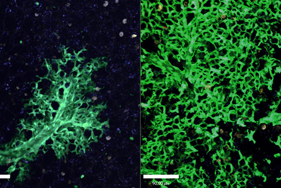 The transplanted stem cells are seen on the left after six weeks, and on the right after 16 weeks