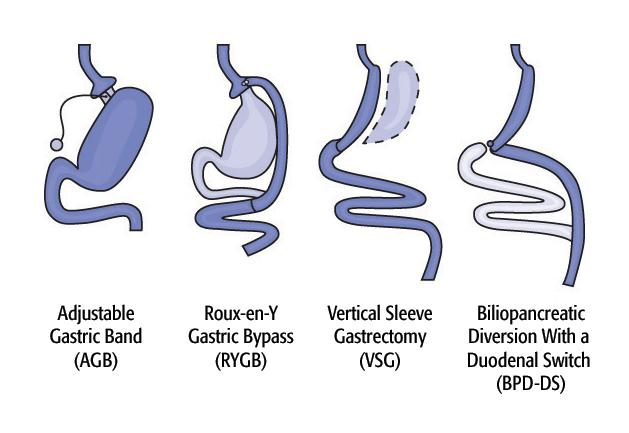 Various approaches toward surgical weight-loss (Photo: National Institutes of Health)