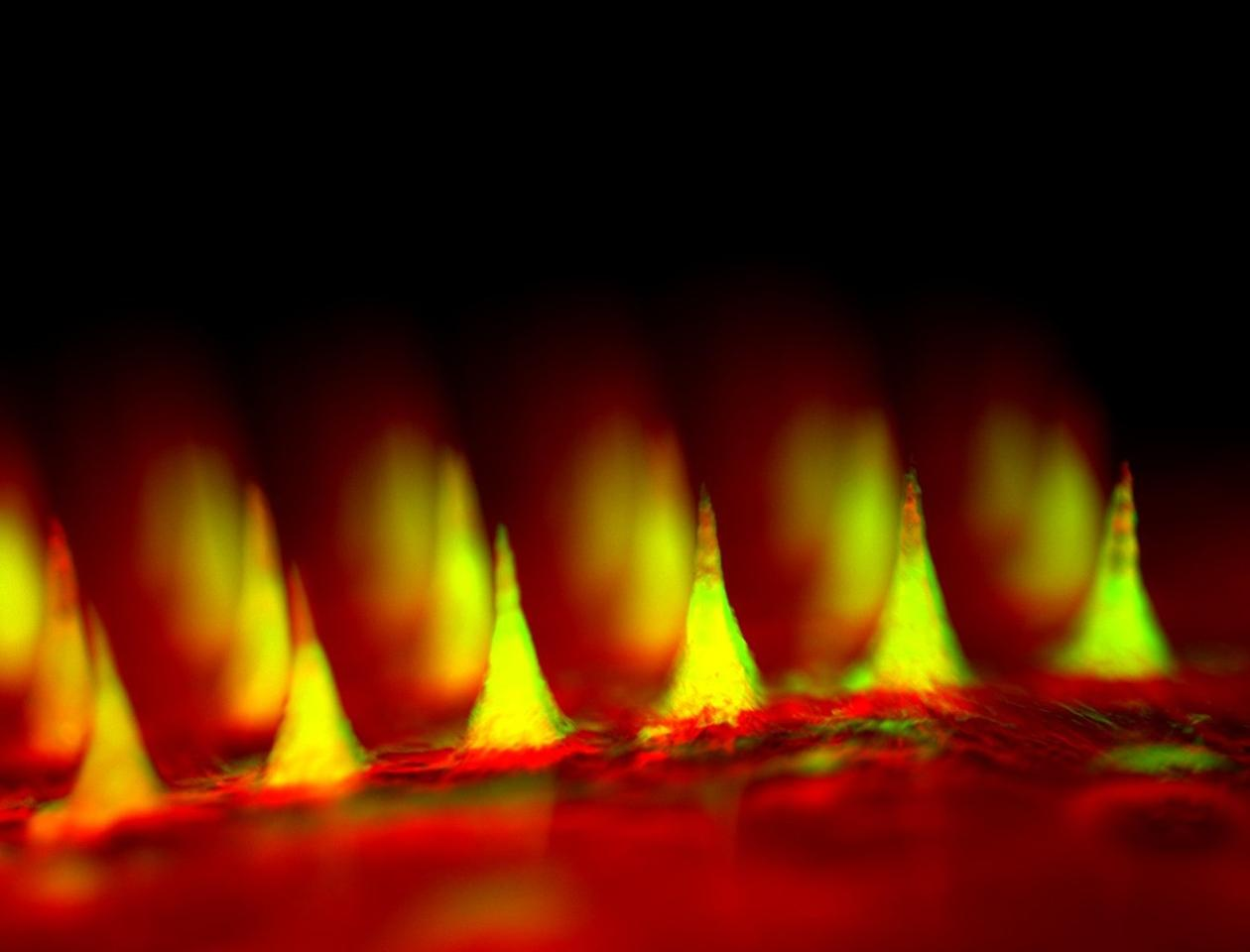 Closeup fluorescent image of the microneedle patch with insulin tagged in green