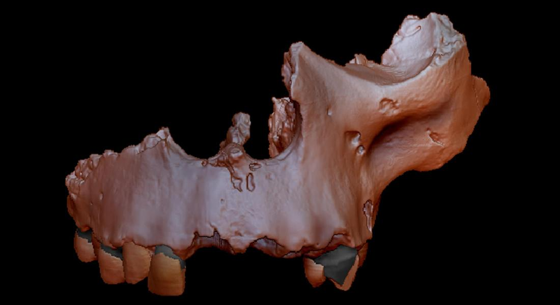 A digital recreation of one of the main samples of Homo antecessor, which has now been placed on the family tree thanks to studies of ancient proteins in its teeth