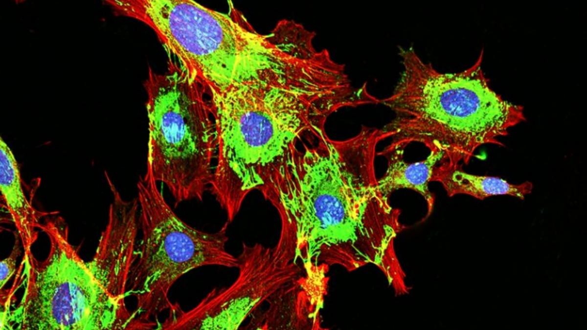 Scientists have identified a molecule that's able to prevent metastatic tumor cells (pictured) from developing in laboratory mice, and the findings could lead to new human treatments down the line
