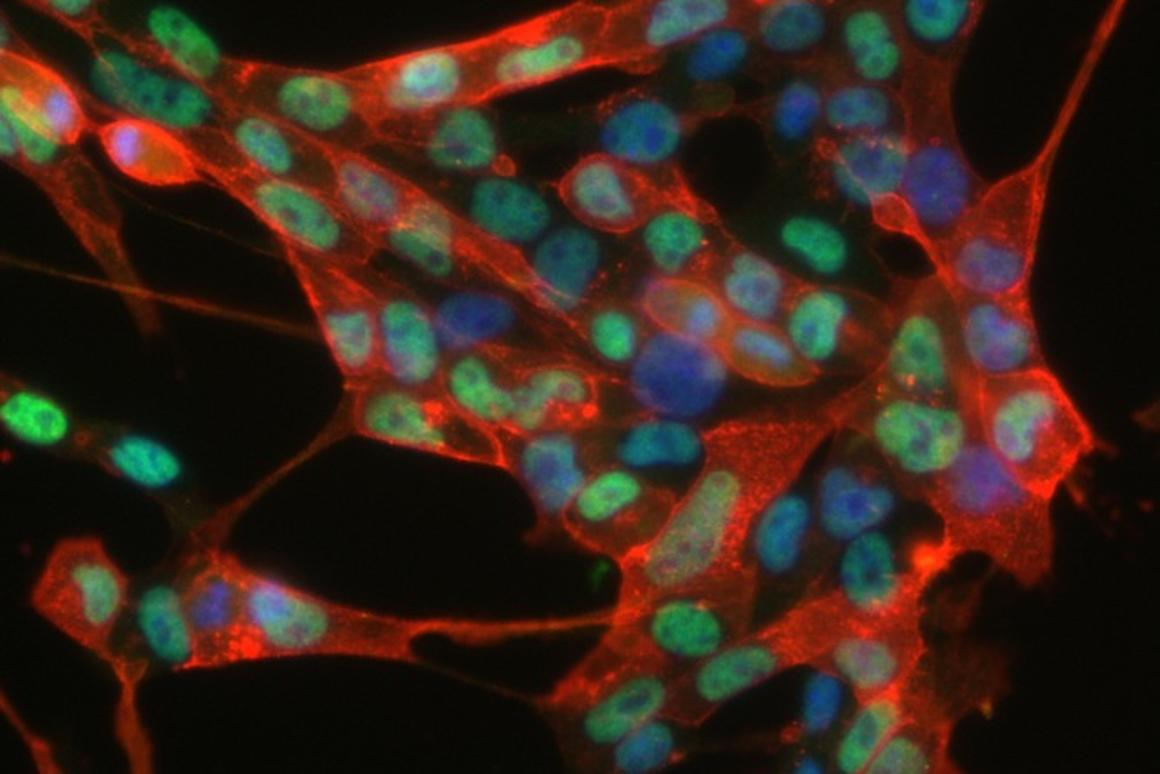 Image of the induced neural stem cells created by reprogramming skin cells (Photo: MPI for Molecular Biomedicine)