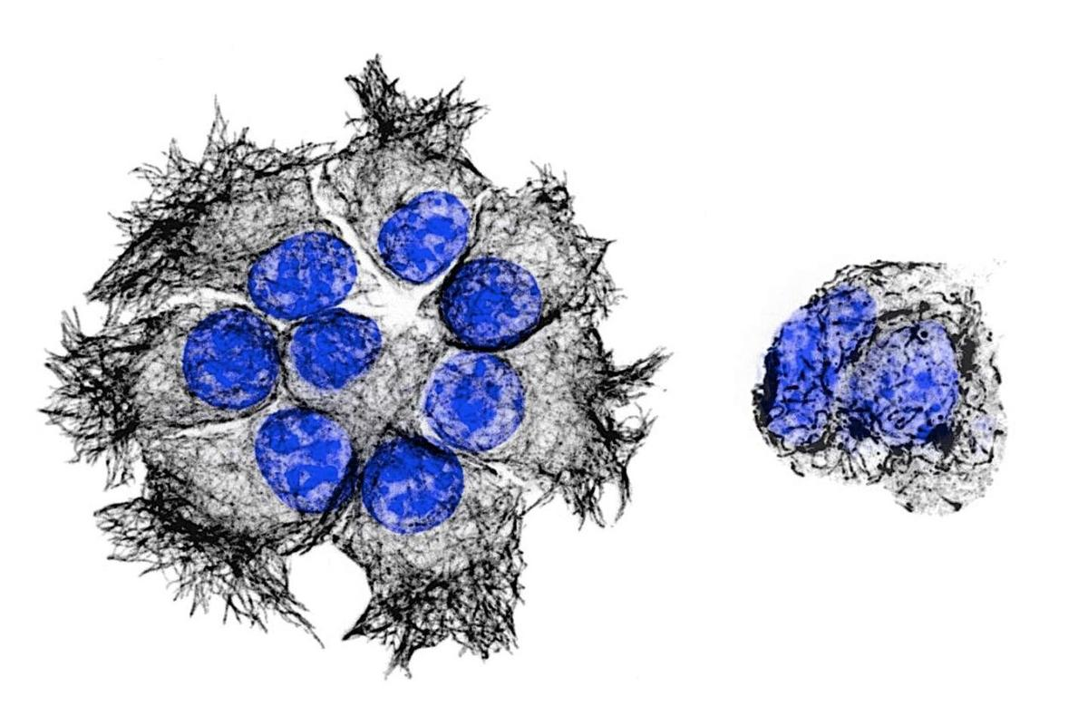 The left image shows clusters of pancreatic cancer cells, while the right image shows cancer treated with the new drug PTC596 (DNA in blue, black are the microtubule structures targeted by the drug)