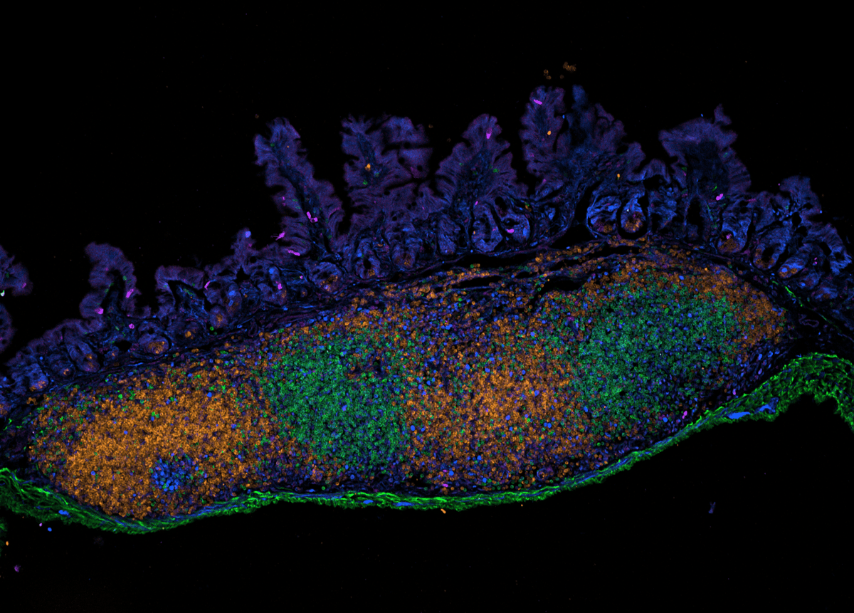 The above image shows immune cells in the epithelial lining of the intestine of a young mouse