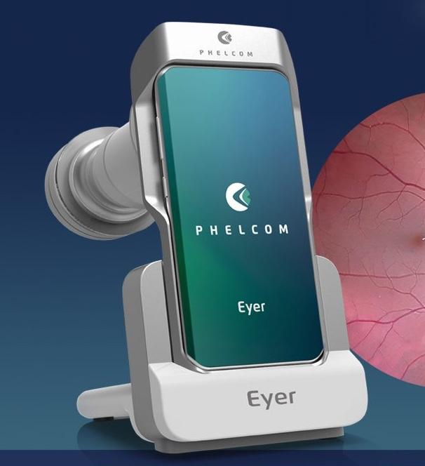 The Eyer sells for US$5,000, which includes the smartphone