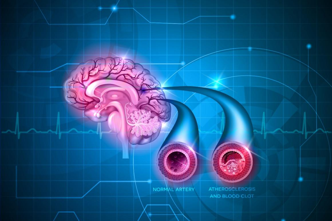Previous research has link declines in blood flow to the brainwith the early stages of Alzheimer's disease