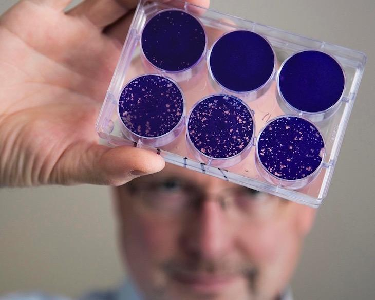 Dr. Matthias Grimier holding up a sample of the modified poliovirus that can attack and kill tumor cells